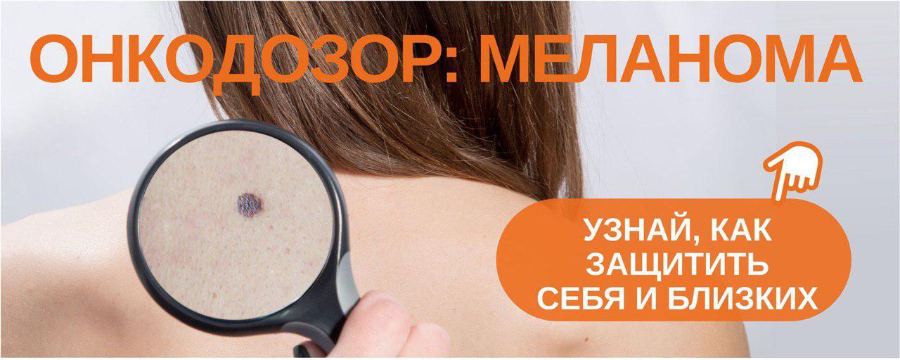 Томский онкодиспансер создал информационный ресурс о меланоме